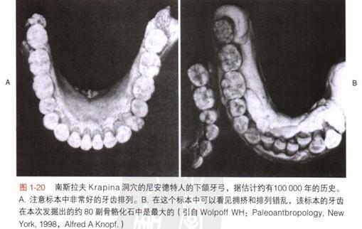 古代人牙齿不齐