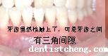 牙齿矫正中的牙龈黑三角