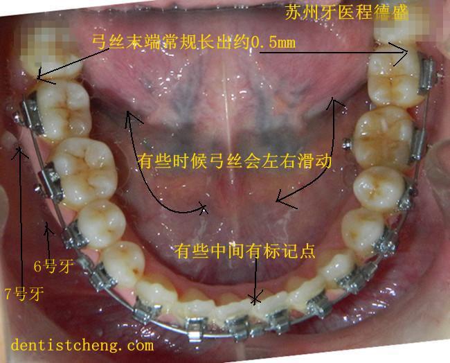 牙齿矫正患者弓丝扎嘴