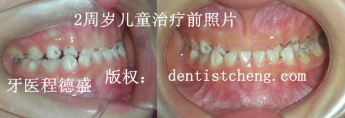 乳牙期矫正
